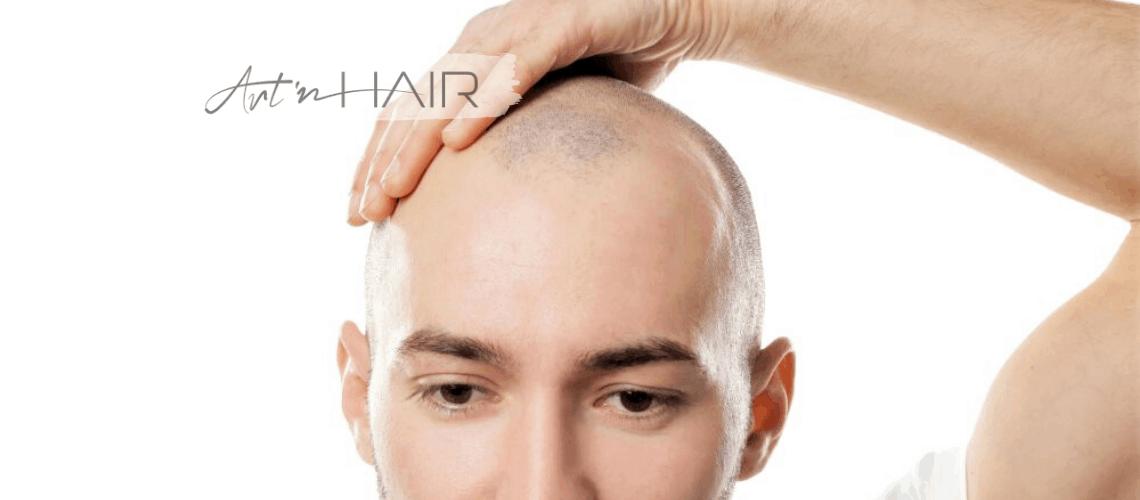 fájdalmas a hajbeültetés