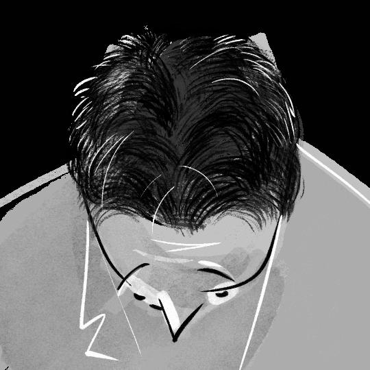 férfi hajról grafika hajbeültetés után