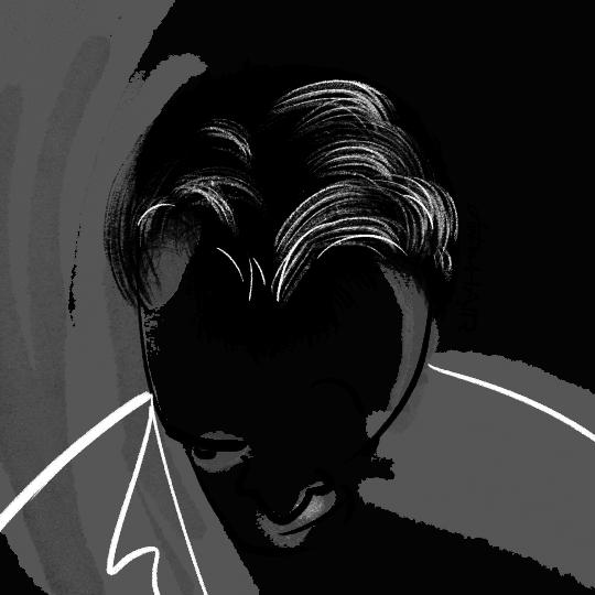 férfi hajról grafika hajbeültetés előtt