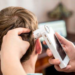 digitális hajvizsgálat mezoterápia előtt
