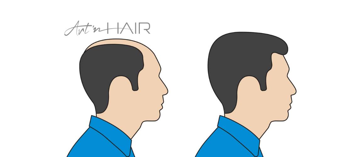 hajbeültetés eredménye