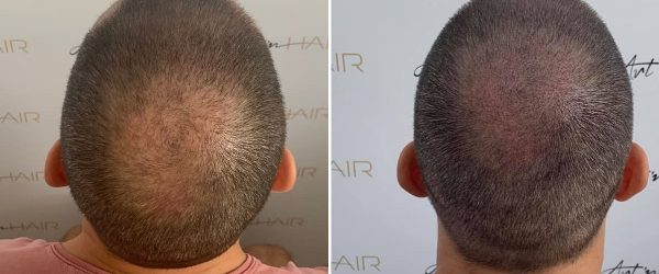férfi mikorpigmentáció előtte-utána